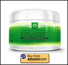 best stretch mark cream for at home use